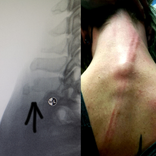 Left: Fully fractured spinous process; Right: photo from night of attack